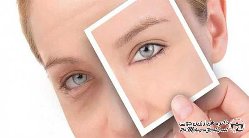 درمان افتادگی پلک با پلاسما جت پلک