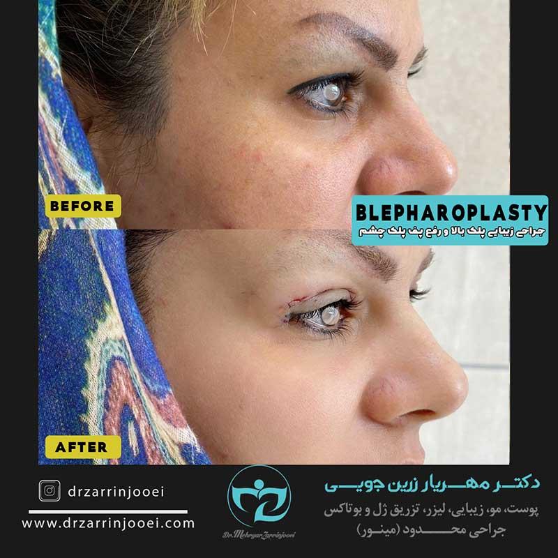 بلفاروپلاستی و جراحی پلک