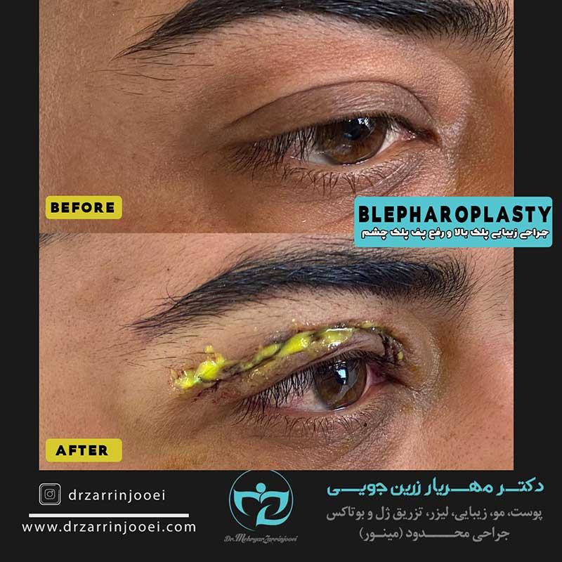 جراحی پف پلک اصفهان
