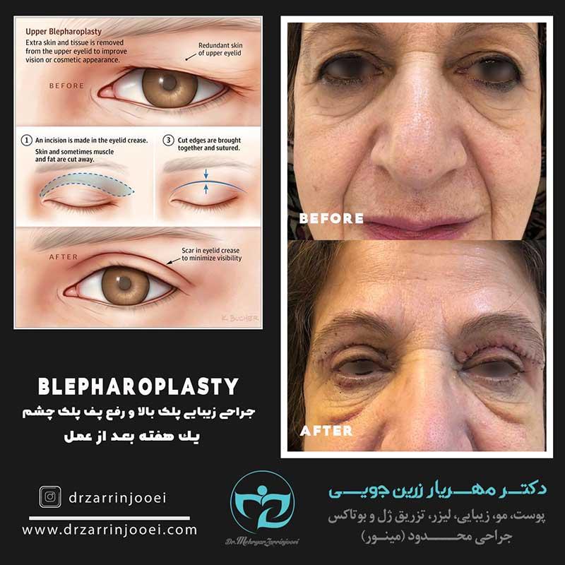 جراحی پلک اصفهان