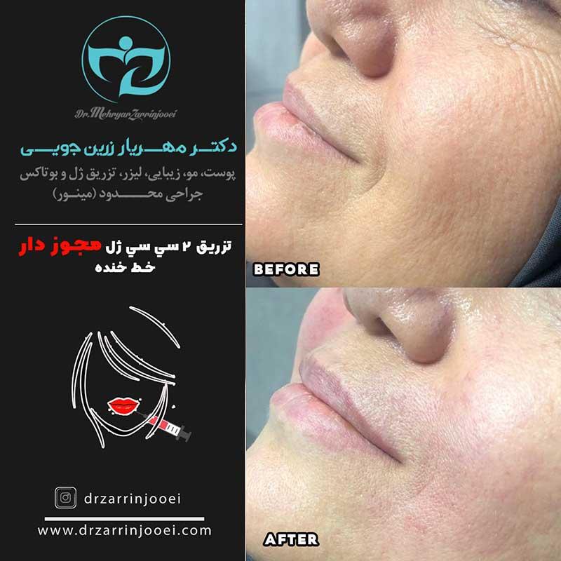 تصاویر قبل و بعد تزریق ژل لب