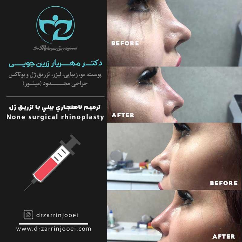 تصاویر قبل و بعد تزریق ژل