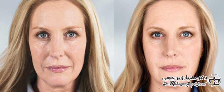 روش های نوین جوان سازی پوست